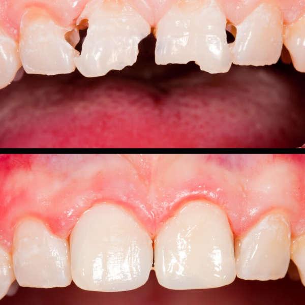 Füllungen Zahnarztpraxis Dr. Josef Urban in Grafing