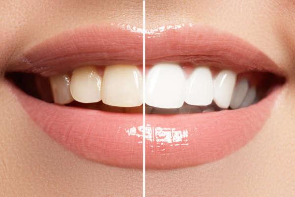 Bleaching Zahnarztpraxis Dr. Josef Urban in Grafing