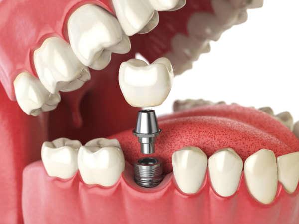 Implantologie Zahnarztpraxis Dr. Josef Urban in Grafing