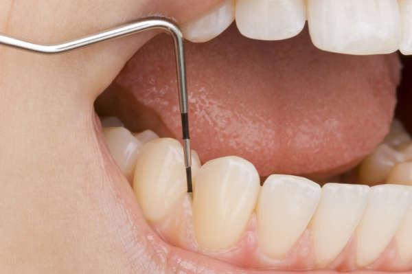 Parodontologie Zahnarztpraxis Dr. Josef Urban in Grafing